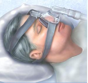 "This is why CPAP users are affectionately termed ""hose heads."""